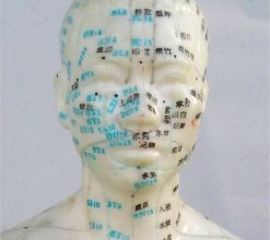 347865_acupuncture_head